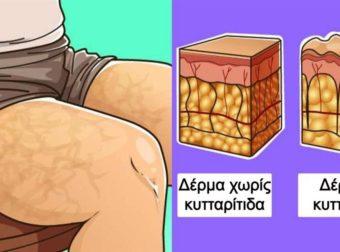 Δίαιτα των 15 ημερών: Ο γρήγορος τρόπος για να εξαφανίσεις την κυτταρίτιδα και να κάψεις το περιττό λίπος